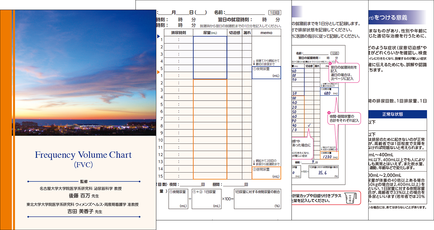 Frequency Volume Chart(FVC)の画像